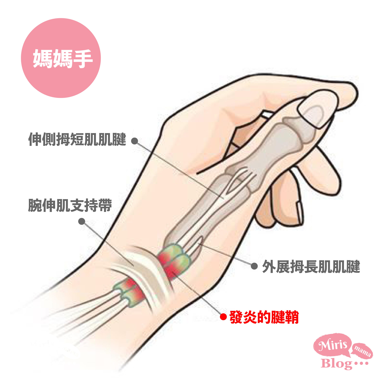媽媽手_防護健康最新資訊_解救疼痛發炎症狀